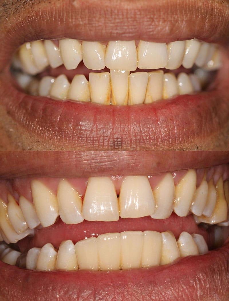 Implant Example 1