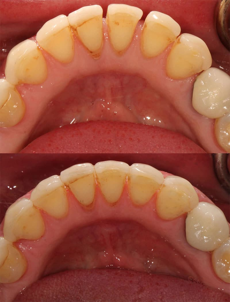 Orthodontic Example 2