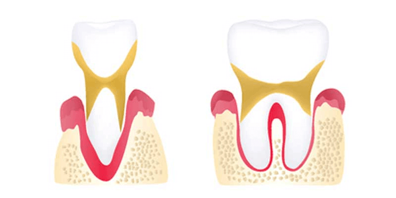 Advanced periodontitis illustration